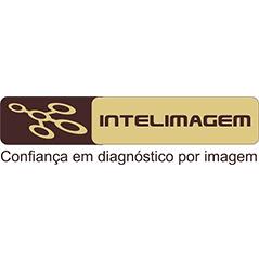 Implantação do SDPI na Intelimagem